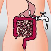 Magenbandpille zur Gewichtsreduktion